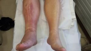 cellulitis patient 1