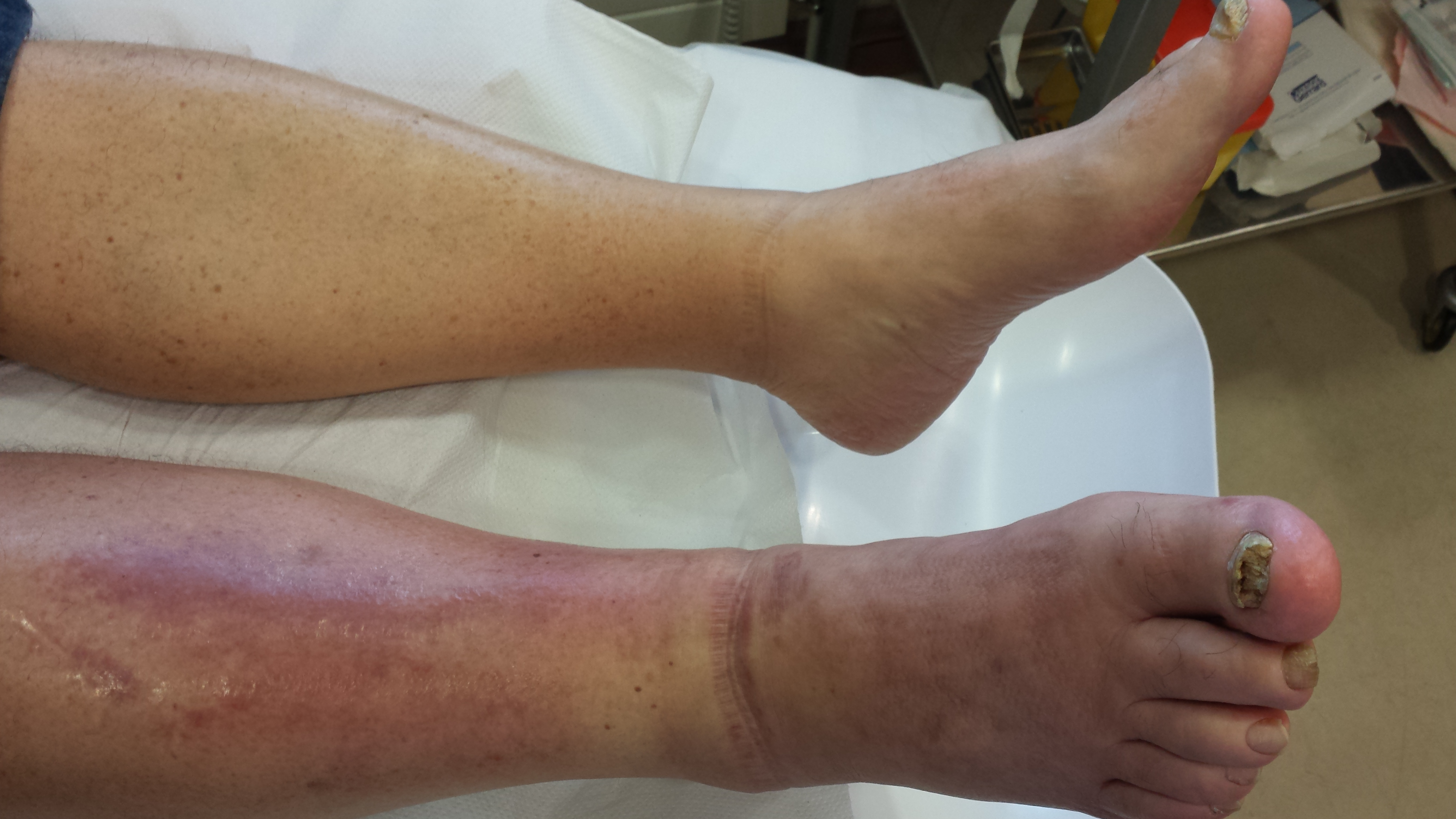 Cellulitis Chiropody and Podiatry Treatment Dublin